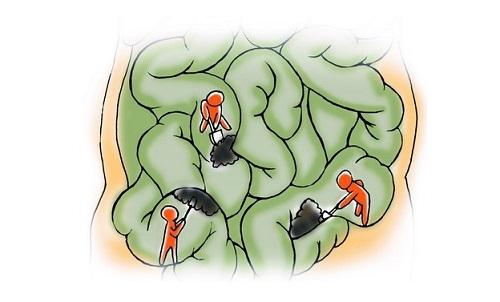 睡眠 肠道 结构图